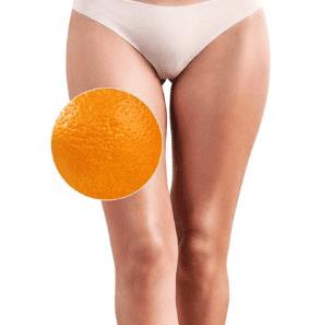 Результаты антицеллюлитного массажа в домашних условиях