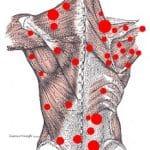 Триггерные точки мышц